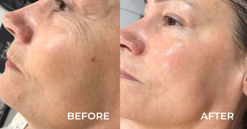 Million Dollar Facial before and after images